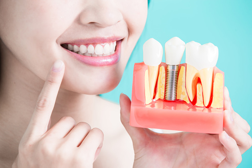 A woman holding a dental implant model in her hand with other hand pointing to the single tooth implant done by Dr. Edward I. Jutkowitz at Edward I. Jutkowitz, D.M.D., P.C. - Periodontics and Implantology