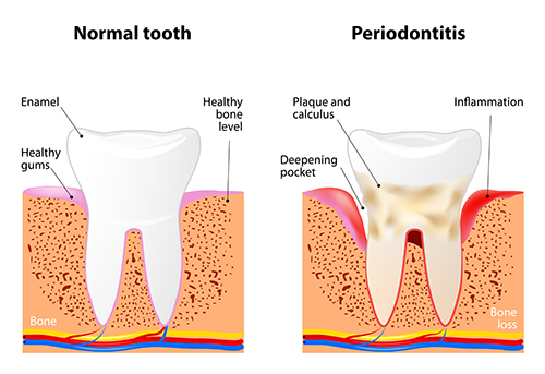 A diagram of normal tooth and tooth with periodontitis at Edward I. Jutkowitz, D.M.D., P.C. - Periodontics and Implantology